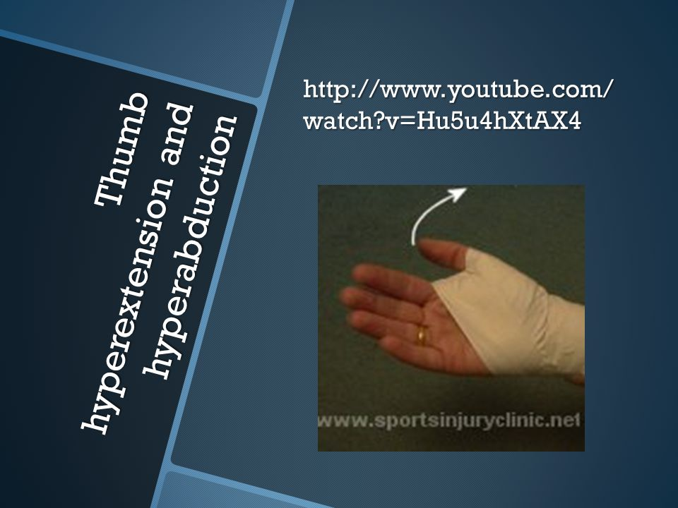 Thumb hyperextension and hyperabduction