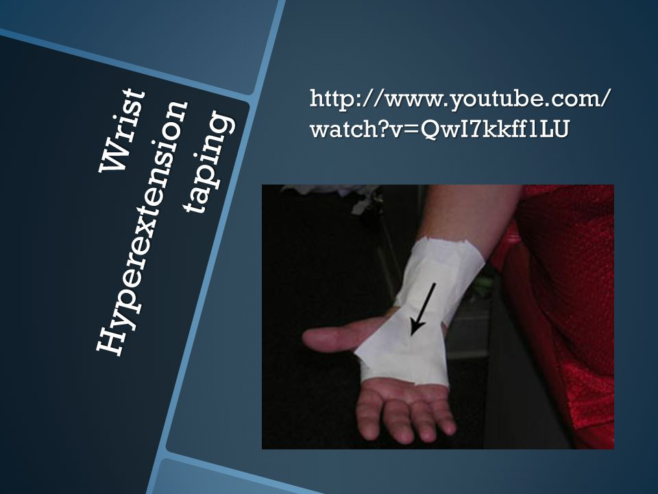 Wrist Hyperextension taping