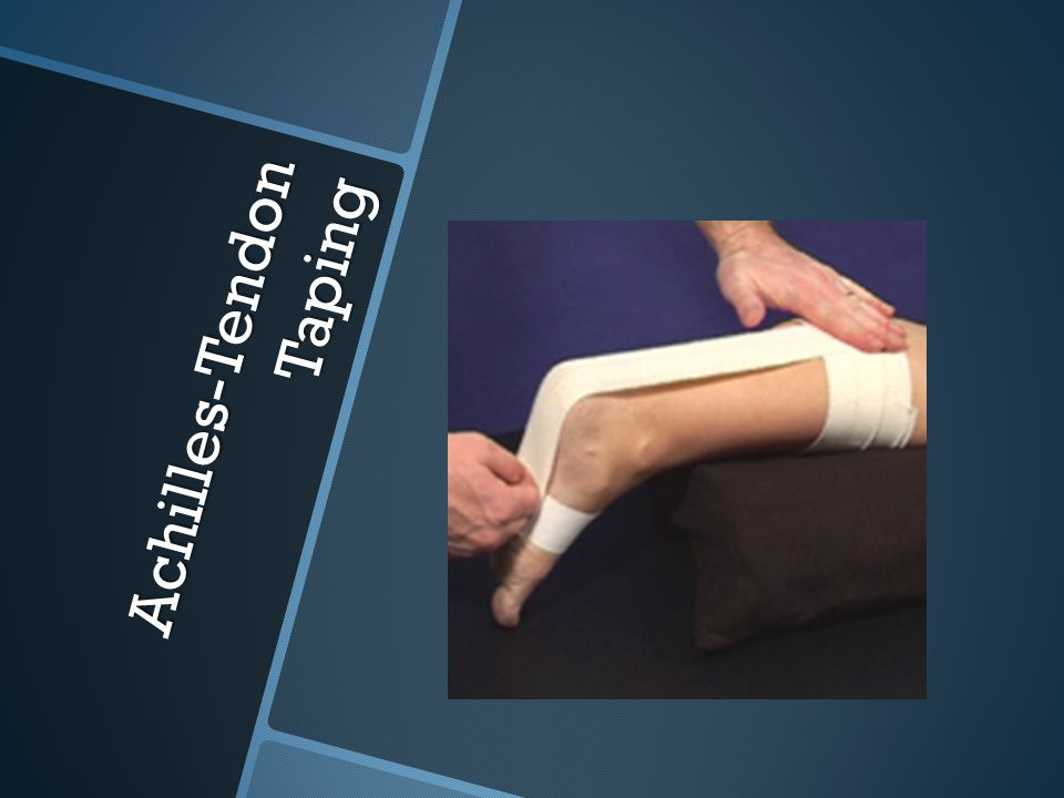 Achilles-Tendon Taping