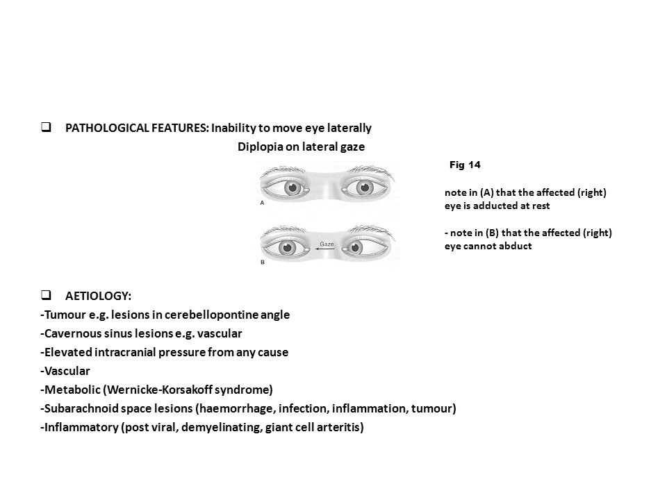 PATHOLOGICAL FEATURES: Inability to move eye laterally