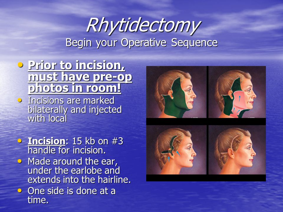 Rhytidectomy Begin your Operative Sequence