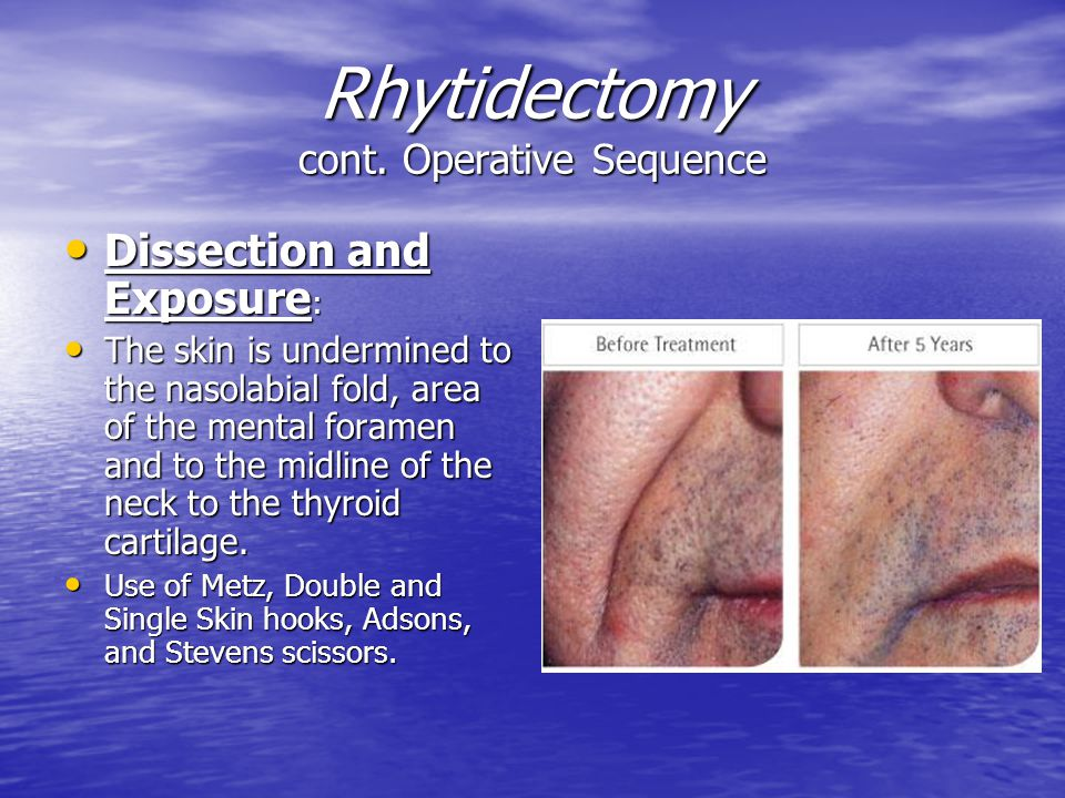Rhytidectomy cont. Operative Sequence
