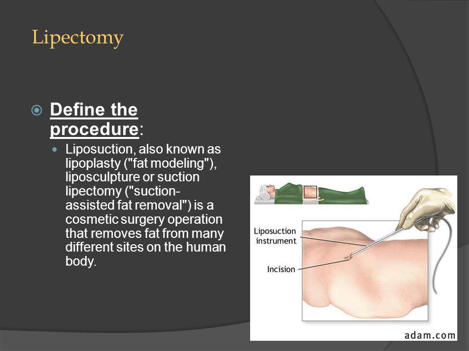 Lipectomy Define the procedure: