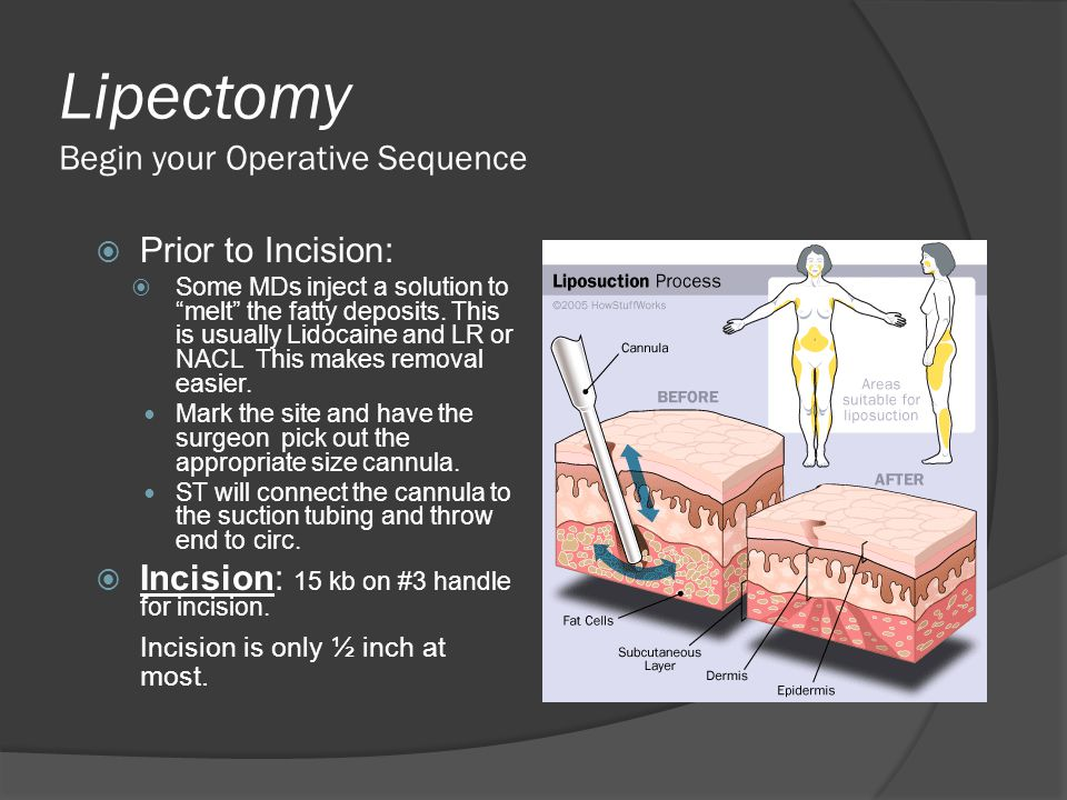 Lipectomy Begin your Operative Sequence