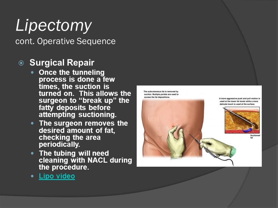 Lipectomy cont. Operative Sequence