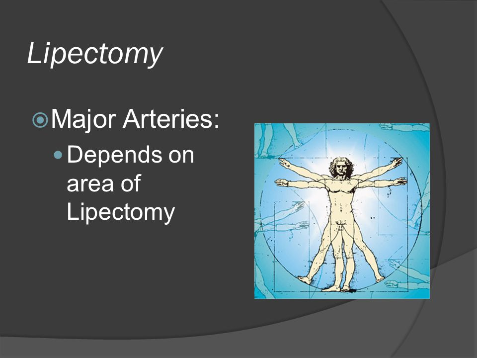 Lipectomy Major Arteries: Depends on area of Lipectomy