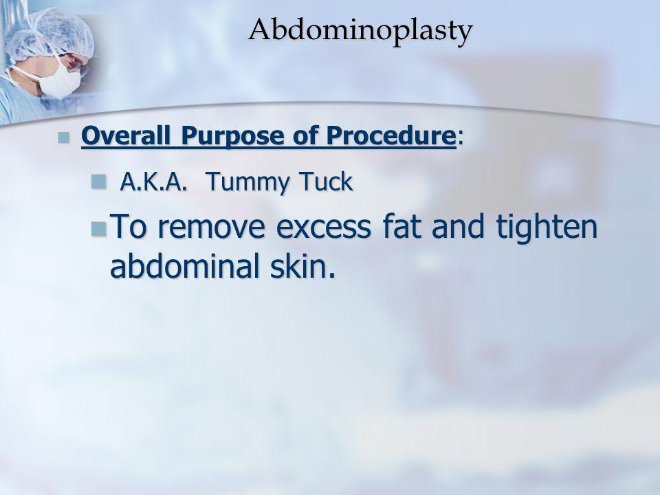 Abdominoplasty A.K.A. Tummy Tuck