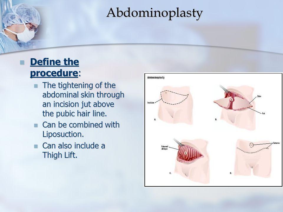 Abdominoplasty Define the procedure: