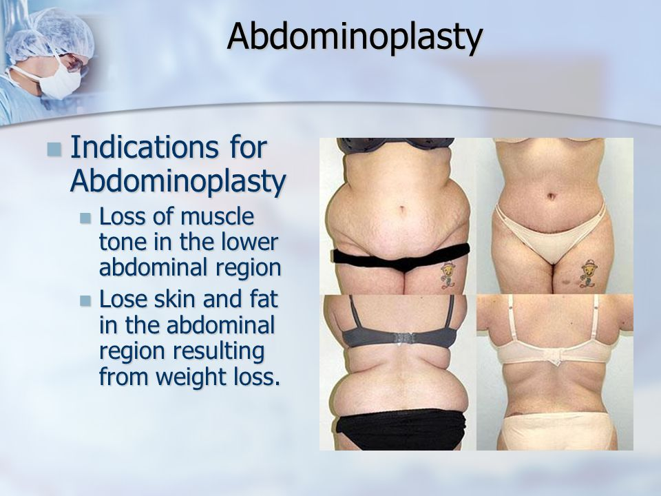 Abdominoplasty Indications for Abdominoplasty
