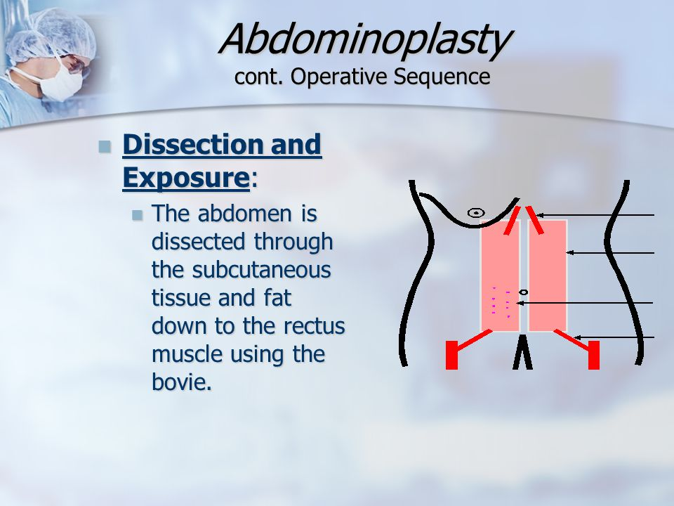 Abdominoplasty cont. Operative Sequence