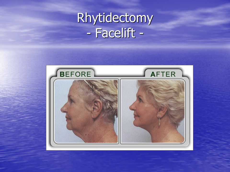 Rhytidectomy - Facelift -