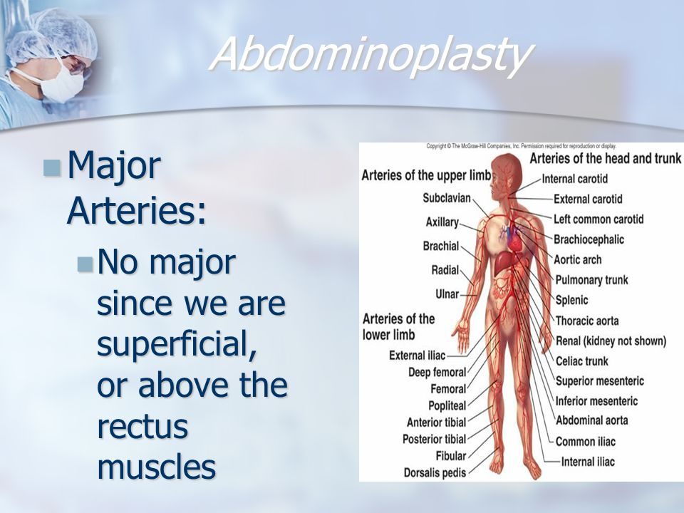 Abdominoplasty Major Arteries:
