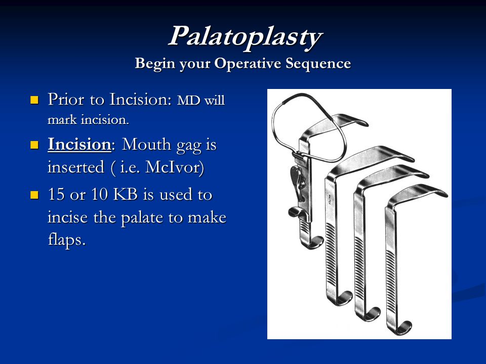 Palatoplasty Begin your Operative Sequence