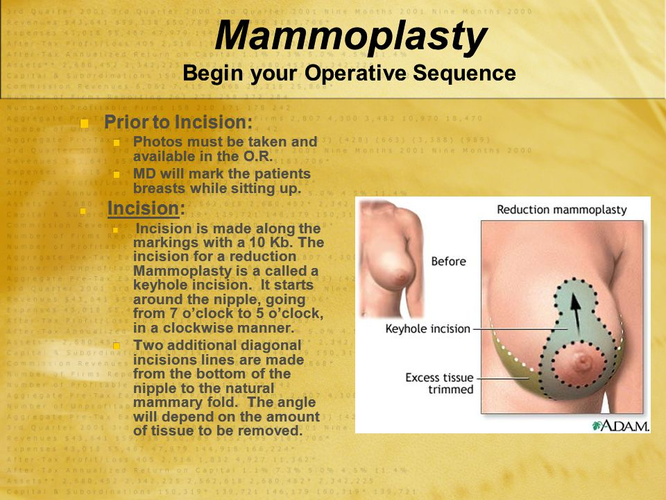 Mammoplasty Begin your Operative Sequence