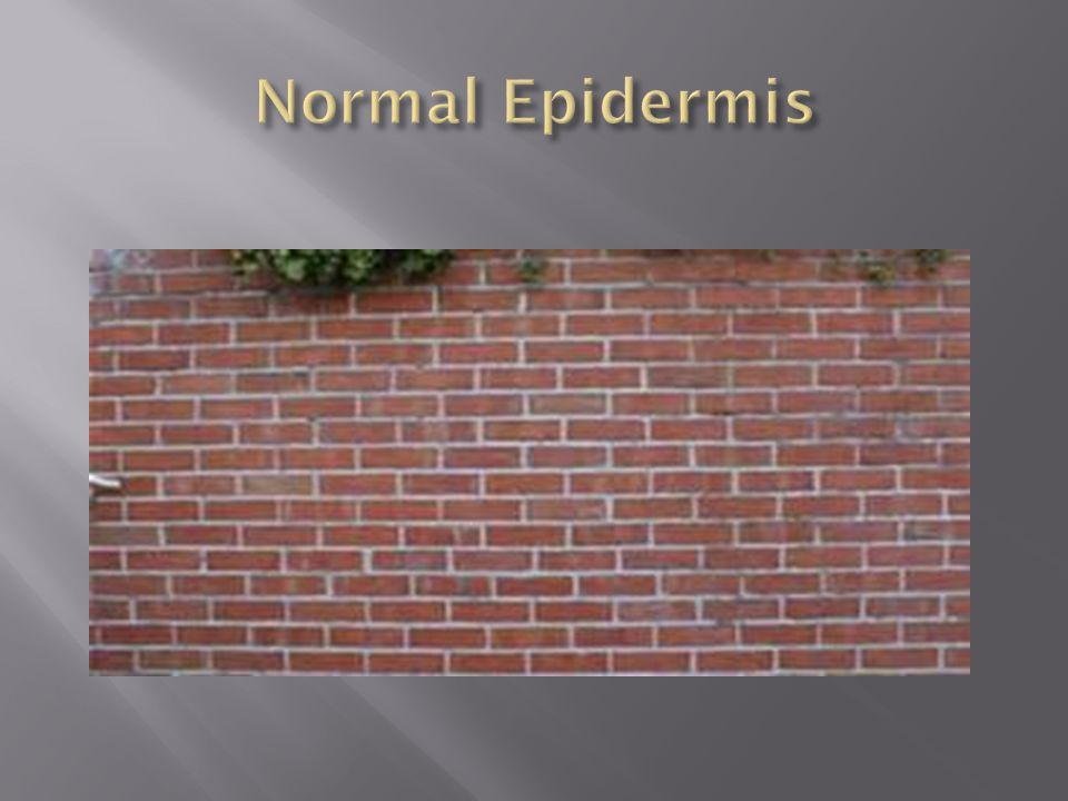 Normal Epidermis