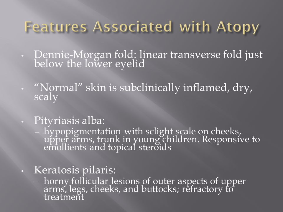 Features Associated with Atopy