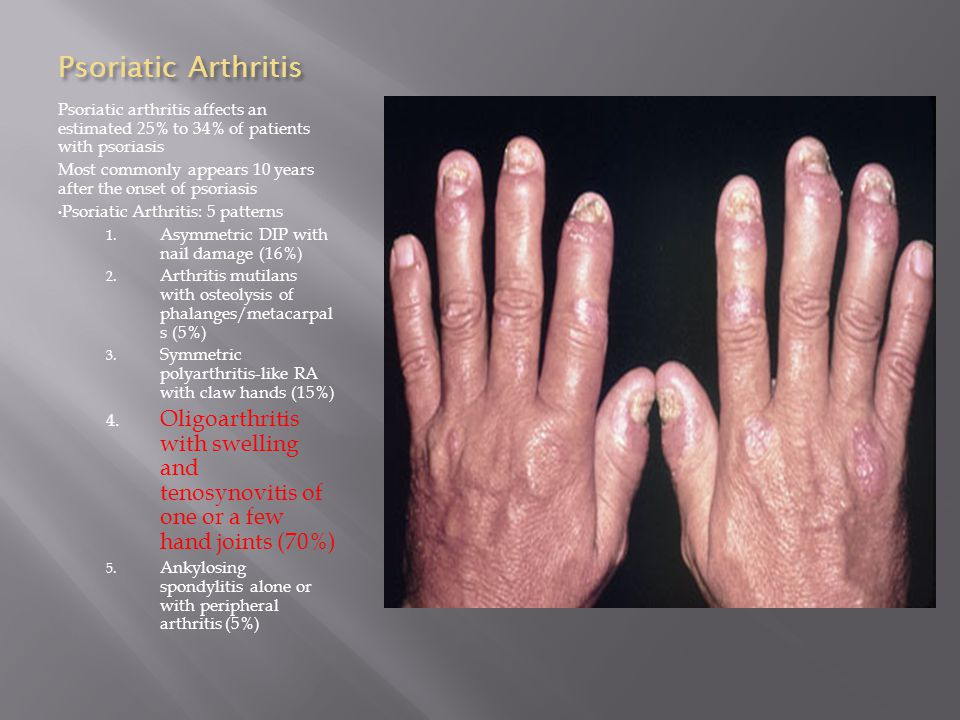Psoriatic Arthritis Psoriatic arthritis affects an estimated 25% to 34% of patients with psoriasis.