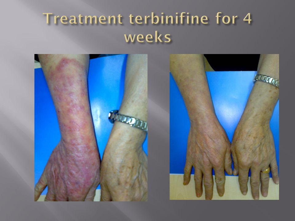 Treatment terbinifine for 4 weeks