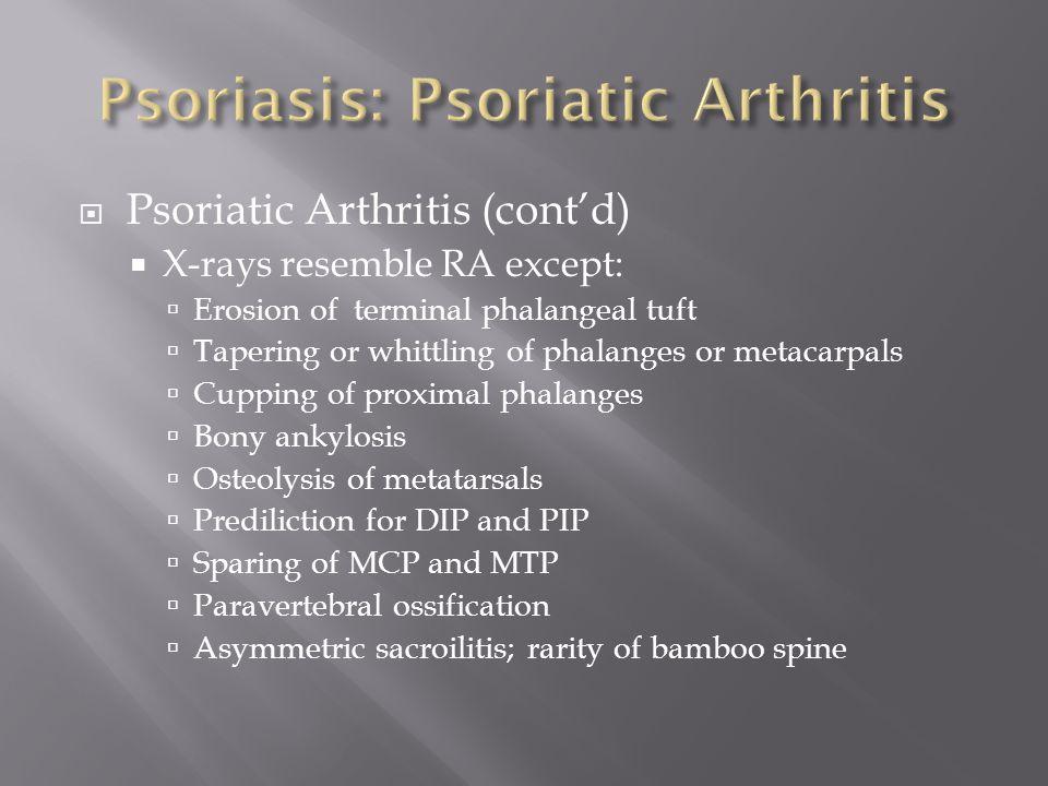 Psoriasis: Psoriatic Arthritis