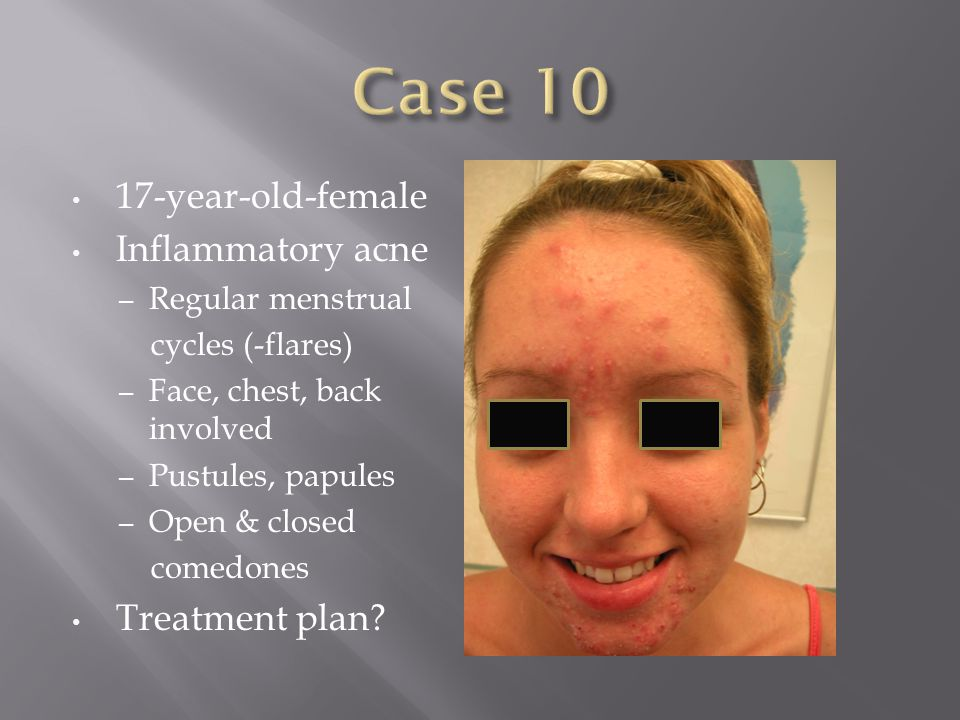 Case 10 17-year-old-female Inflammatory acne Treatment plan