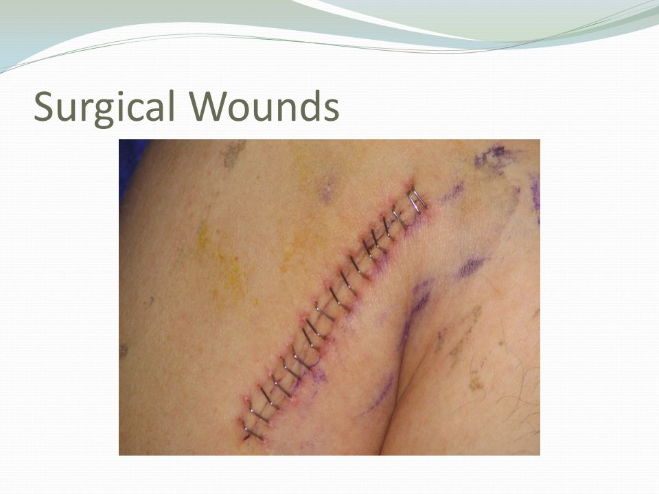 Surgical Wounds