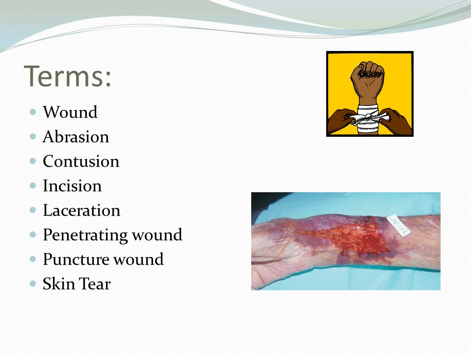Terms: Wound Abrasion Contusion Incision Laceration Penetrating wound