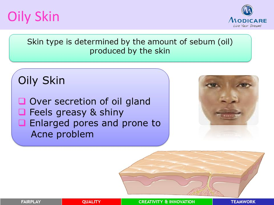 Oily Skin Oily Skin Over secretion of oil gland Feels greasy & shiny
