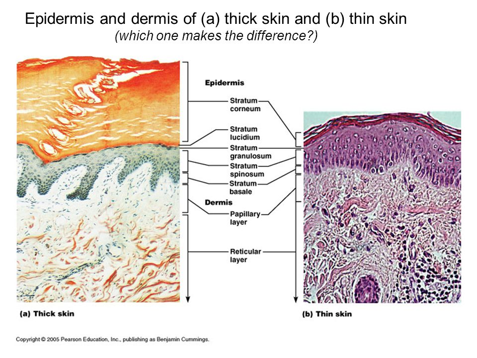 Epidermis and dermis of (a) thick skin and (b) thin skin
