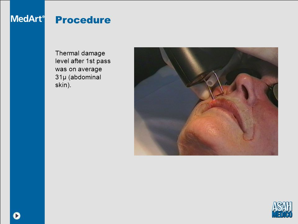 Procedure Thermal damage level after 1st pass was on average 31µ (abdominal skin).