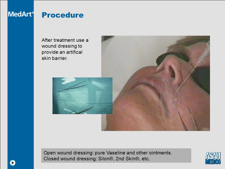 Procedure After treatment use a wound dressing to provide an artifical skin barrier.