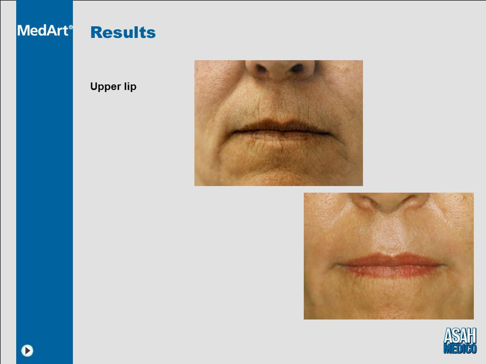 Results Upper lip