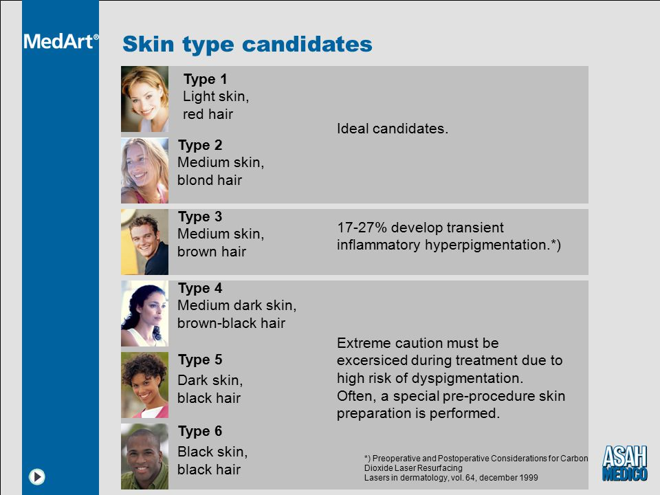 Skin type candidates Type 1 Light skin, red hair Ideal candidates.