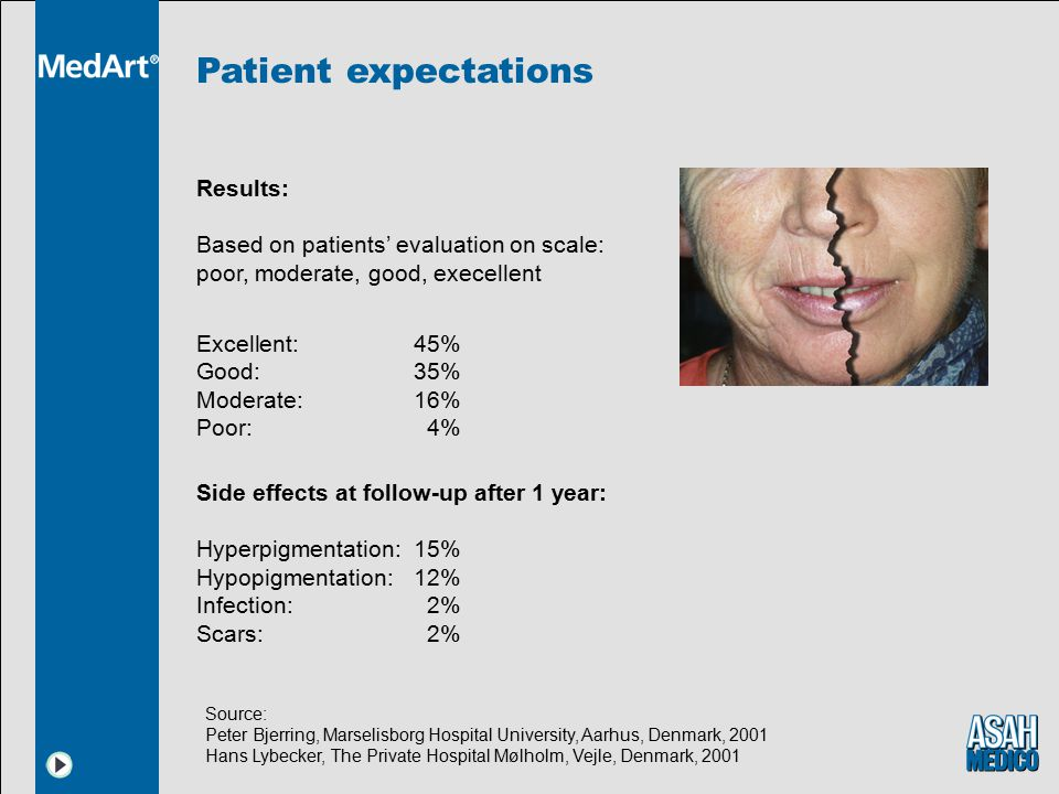 Patient expectations Results: Based on patients' evaluation on scale: poor, moderate, good, execellent.