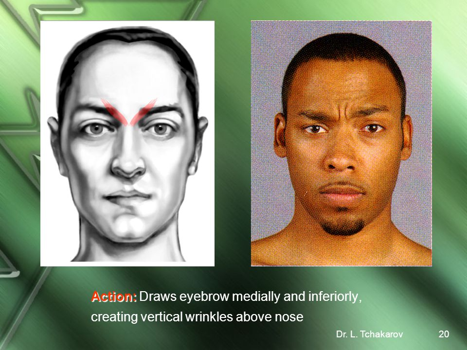 Action: Draws eyebrow medially and inferiorly, creating vertical wrinkles above nose