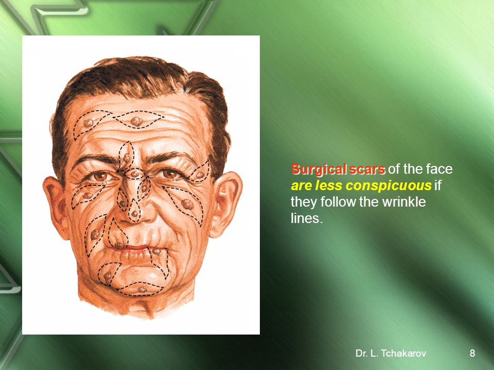 Surgical scars of the face are less conspicuous if they follow the wrinkle lines.