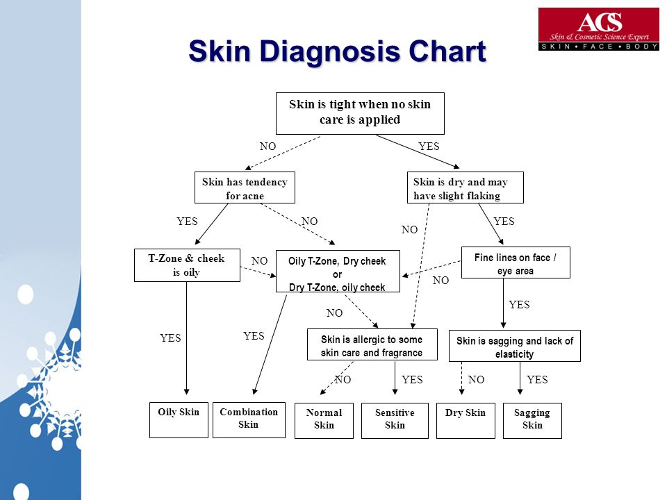 Skin Diagnosis Chart Skin is tight when no skin care is applied NO YES