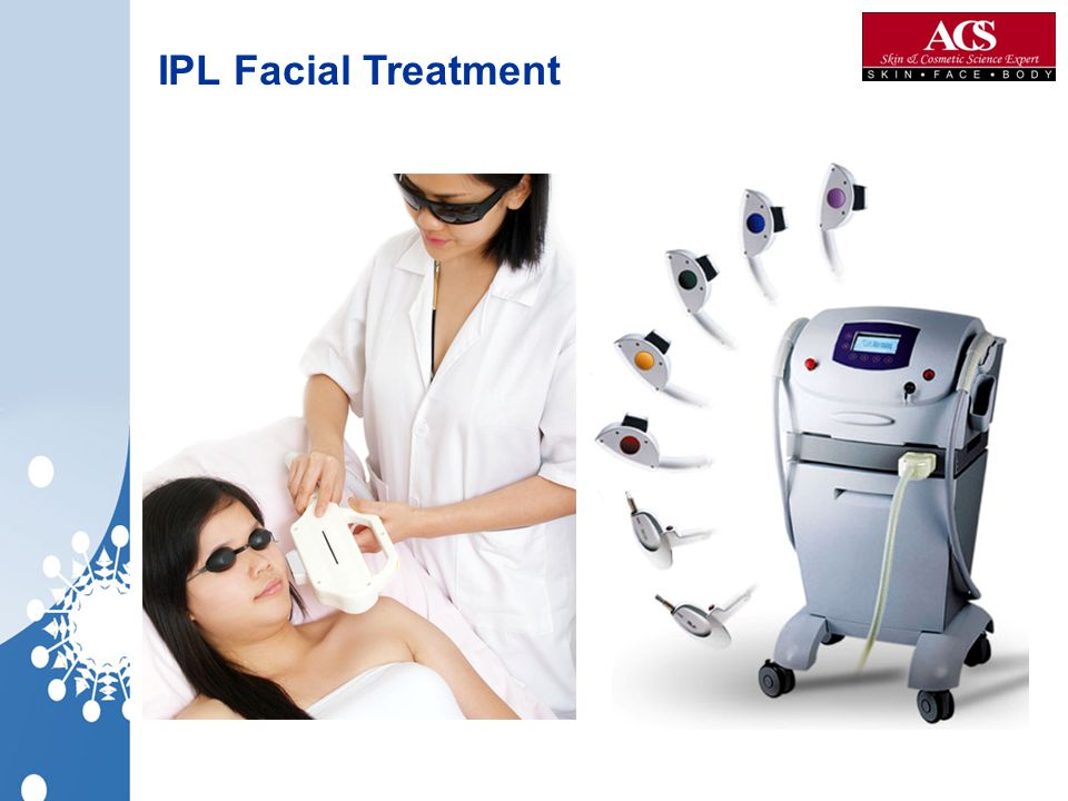 IPL Facial Treatment