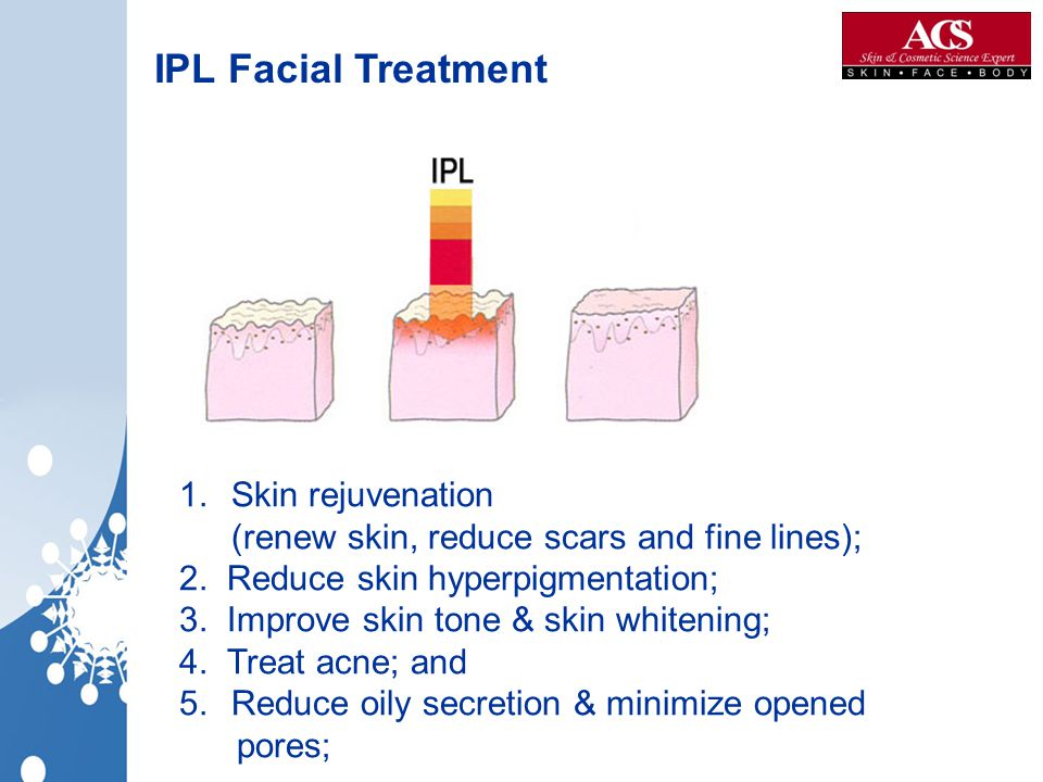 IPL Facial Treatment Skin rejuvenation (renew skin, reduce scars and fine lines); 2. Reduce skin hyperpigmentation;