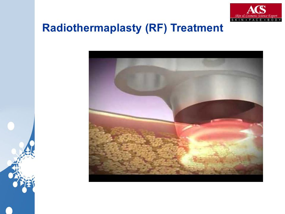 Radiothermaplasty (RF) Treatment