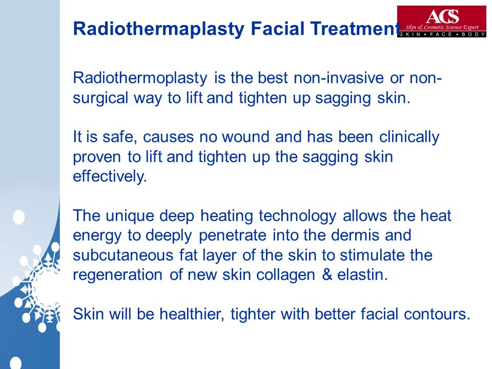 Radiothermaplasty Facial Treatment
