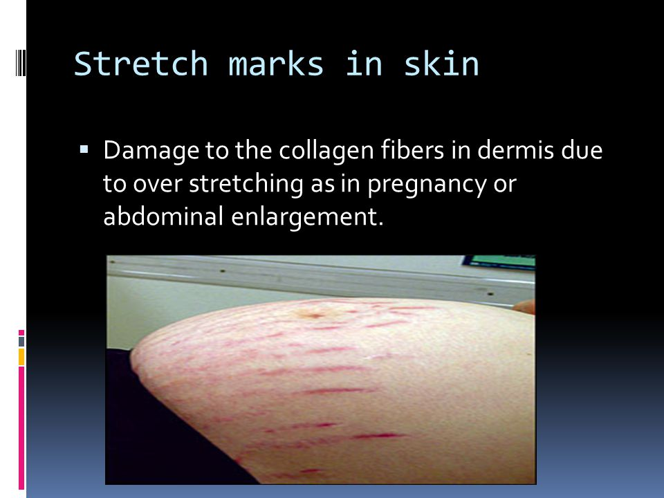 Stretch marks in skin Damage to the collagen fibers in dermis due to over stretching as in pregnancy or abdominal enlargement.