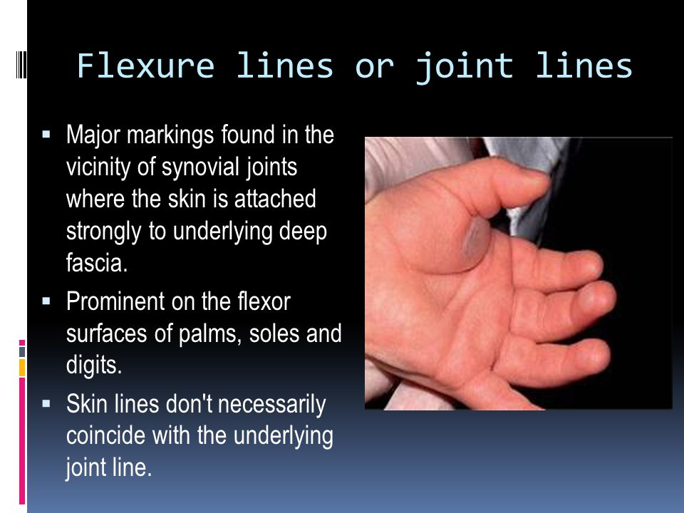 Flexure lines or joint lines