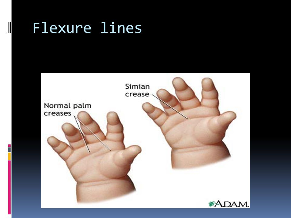 Flexure lines