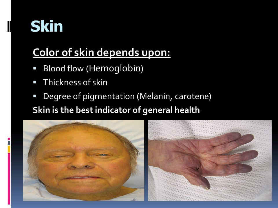 Skin Color of skin depends upon: Blood flow (Hemoglobin)