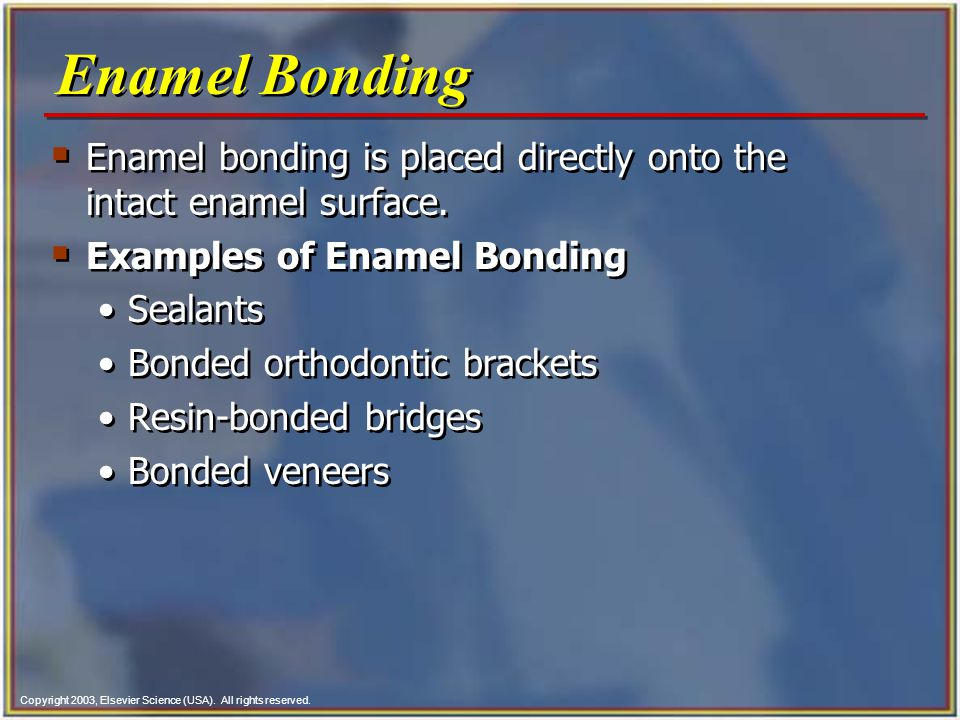 Enamel Bonding Enamel bonding is placed directly onto the intact enamel surface. Examples of Enamel Bonding.