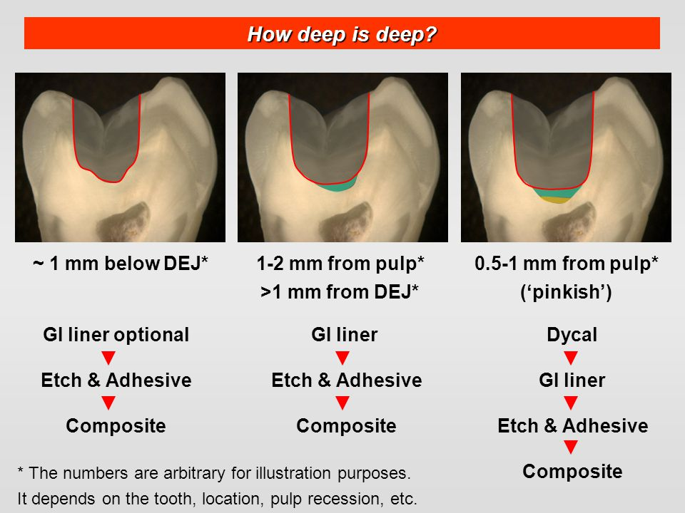 How deep is deep ~ 1 mm below DEJ* 1-2 mm from pulp*