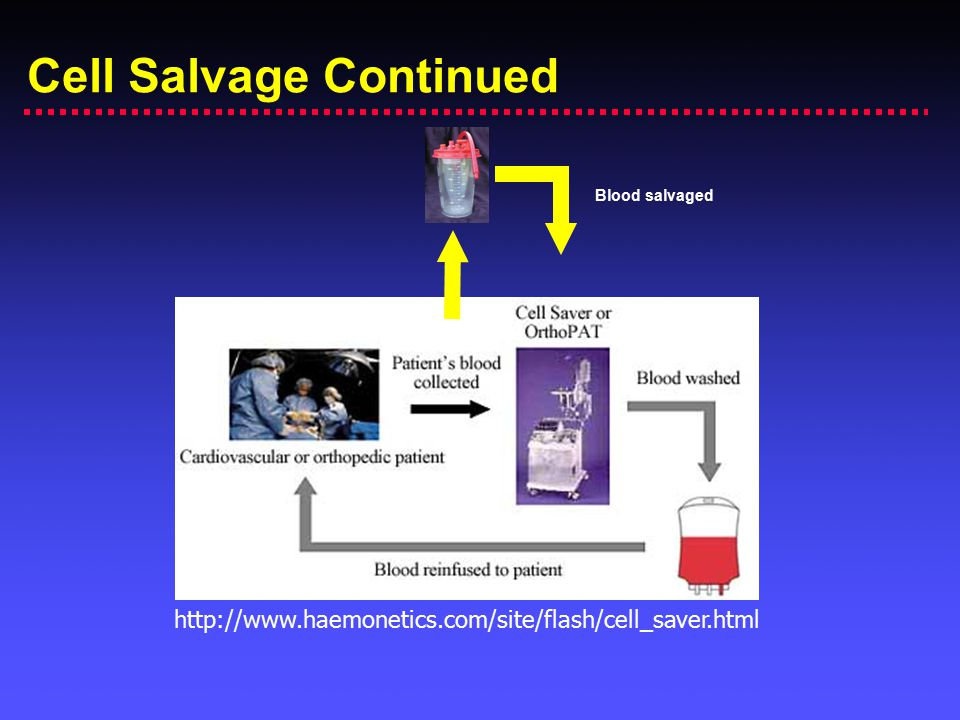 Cell Salvage Continued