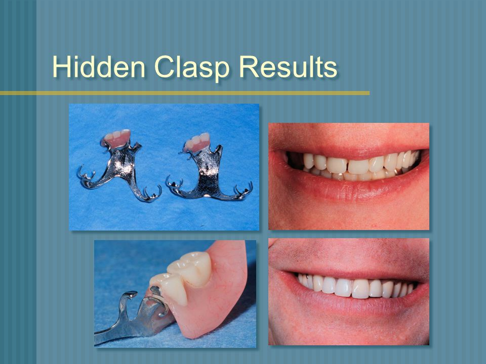 Hidden Clasp Results