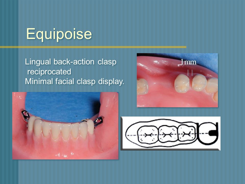 Equipoise Lingual back-action clasp reciprocated
