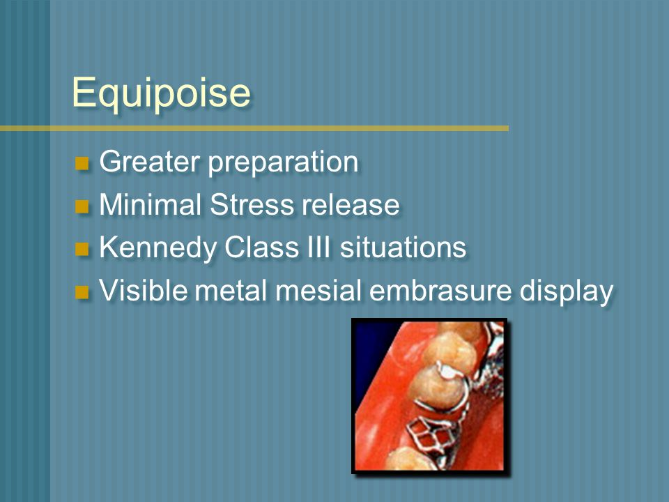 Equipoise Greater preparation Minimal Stress release